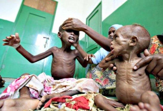 A sub taxação de fortunas é o que, também, provoca a fome e a desigualdade no planeta e torna esta imagem a evidência da morte da civilização